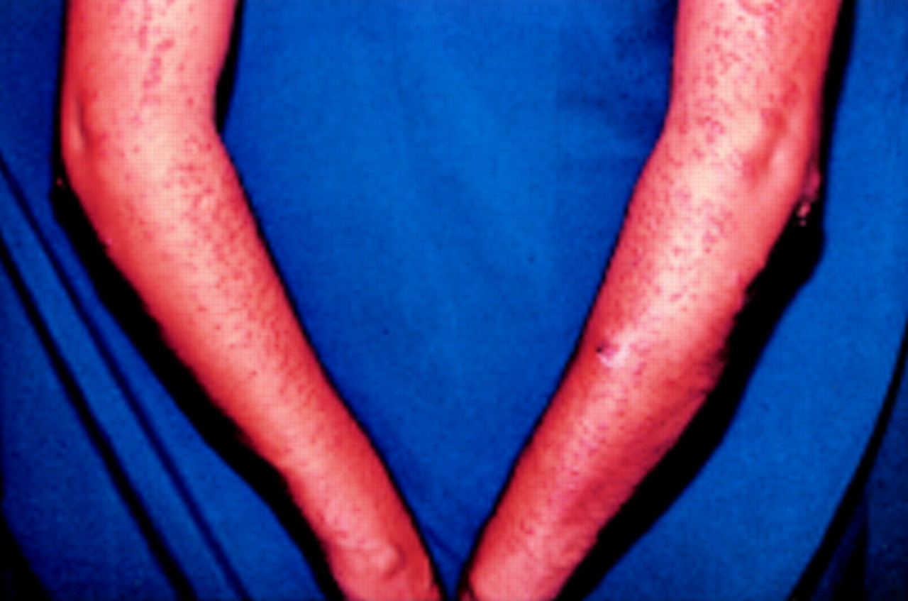 cutaneous nodules in a patient with polyarthritis
