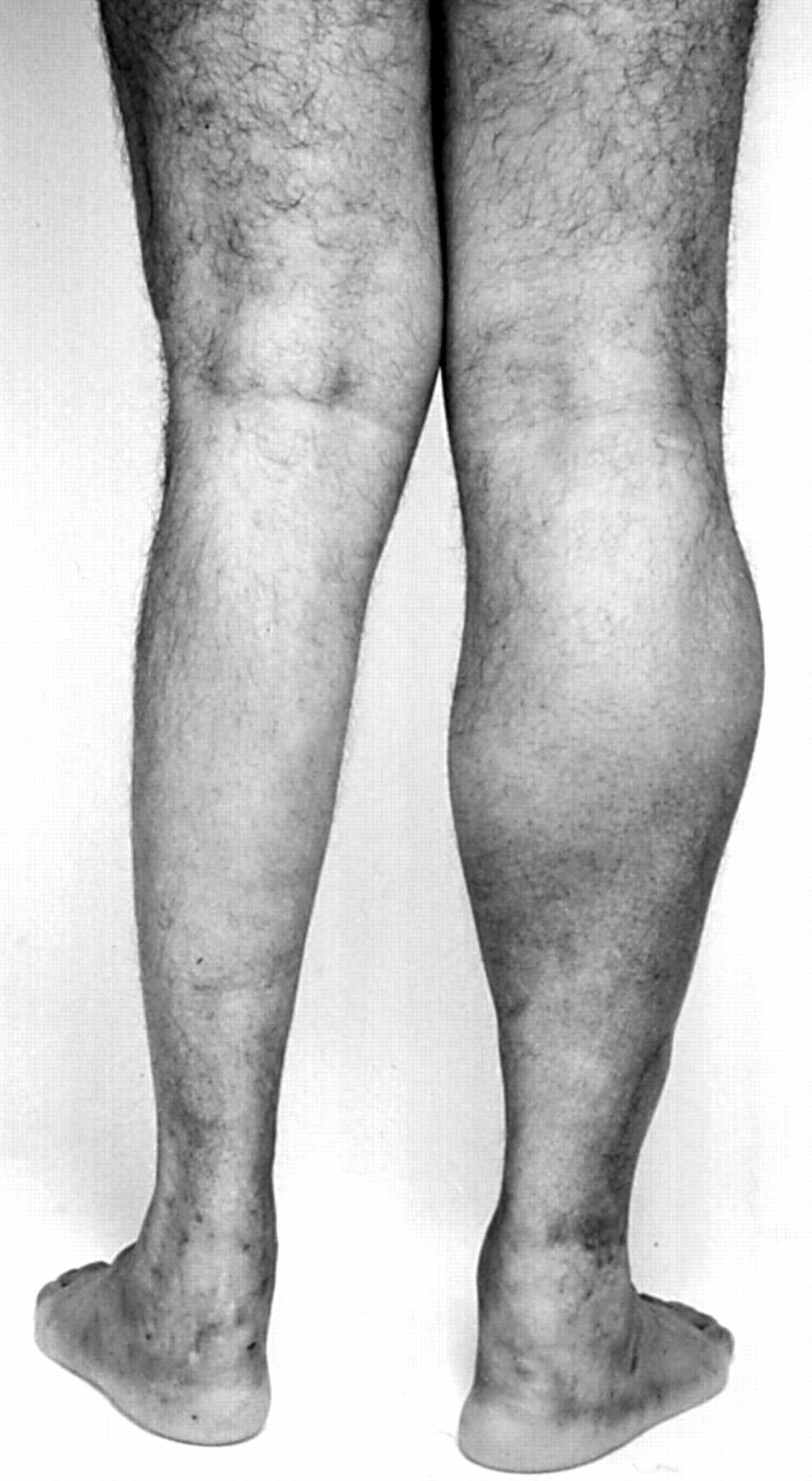 No muscle growth disease