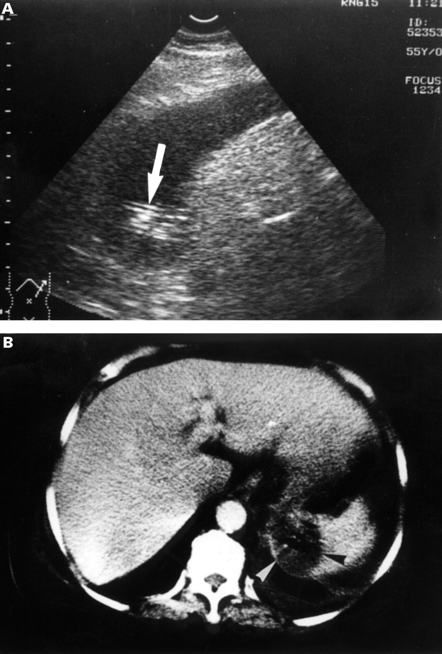 Ultrasonographic findings and differentiation of benign and