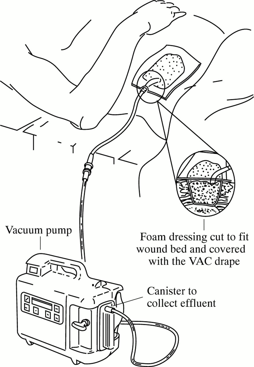 Vacuum Assisted Closure System In The Management Of