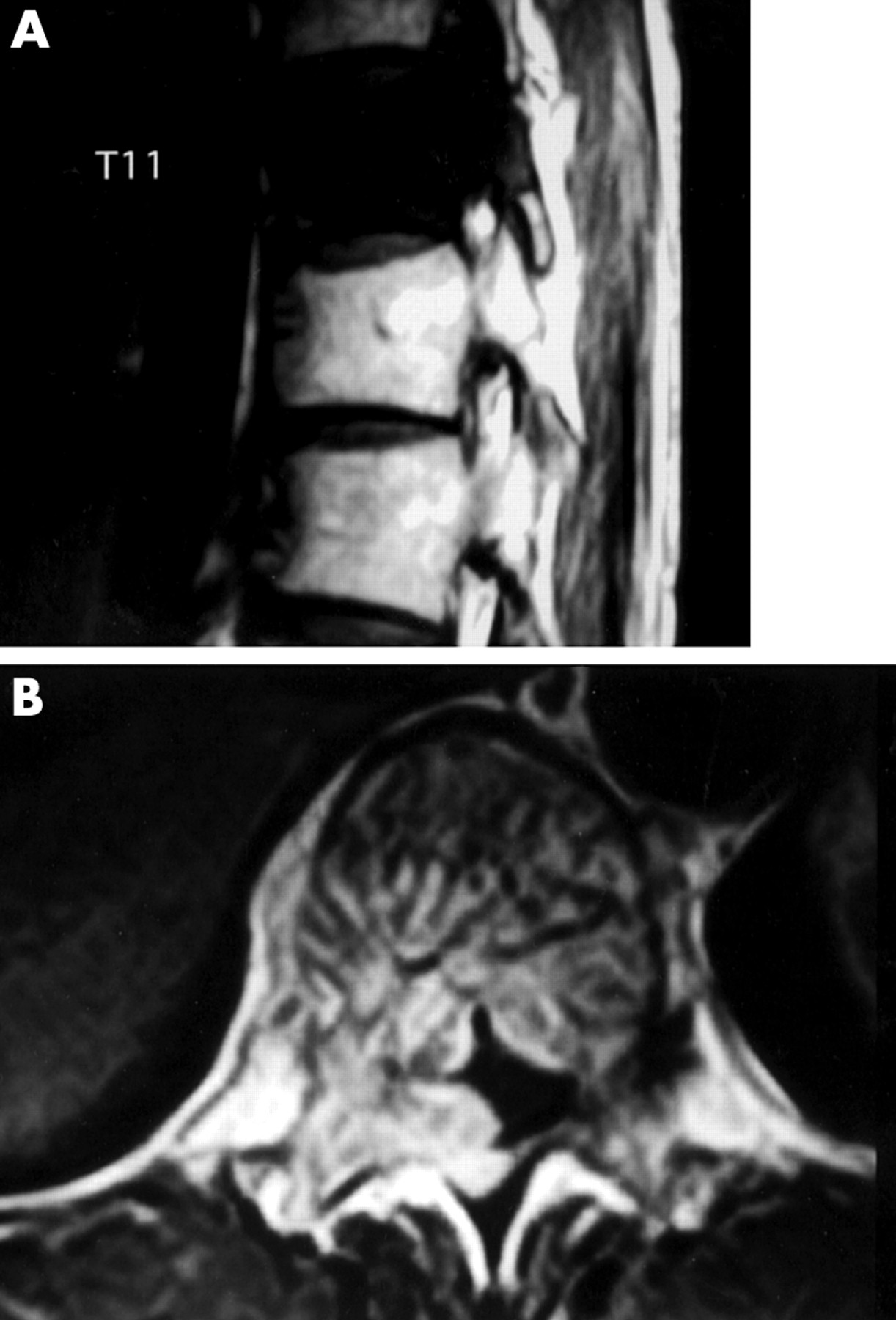 Spinal Reconstruction For Symptomatic Thoracic Haemangioma Using A