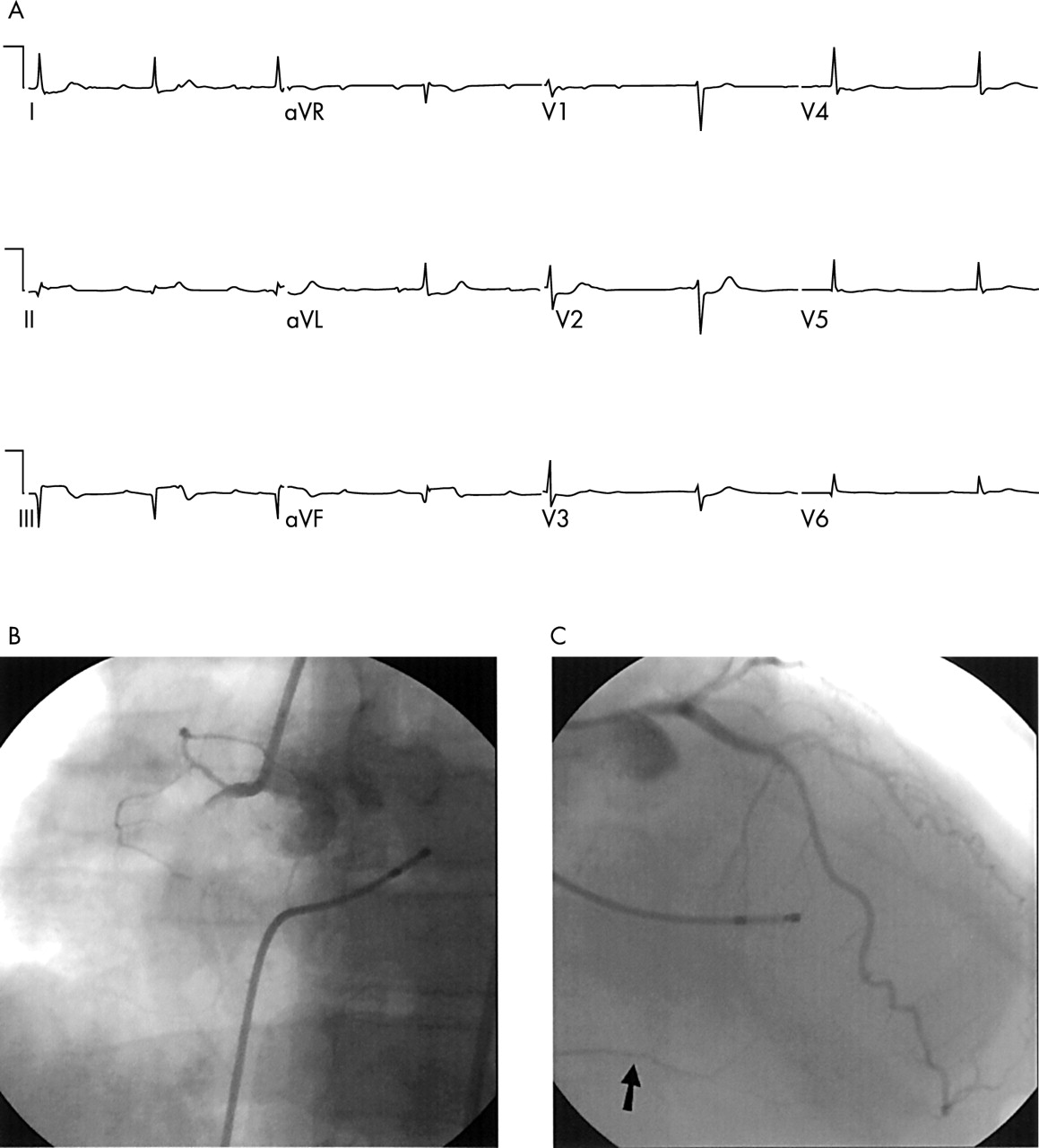 The electrocardiogram in ST elevation acute myocardial infarction ...