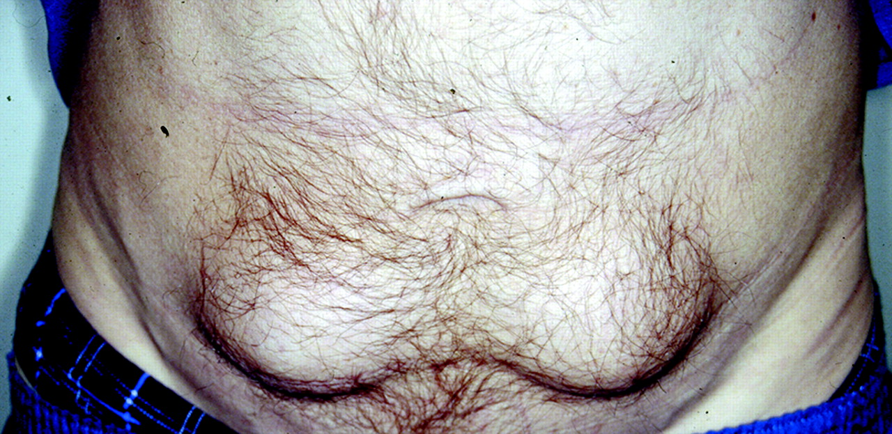 Nodules of fibrocollagenous scar tissue induced by