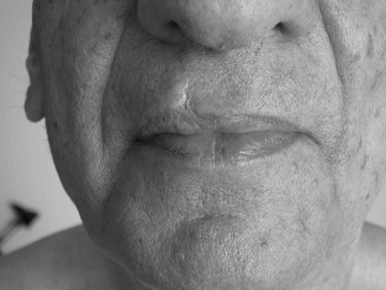 Reactivation of old scars: inevitably sarcoid | Postgraduate Medical