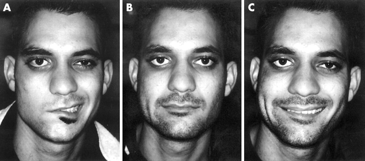 Surgical correction of unilateral and bilateral facial palsy