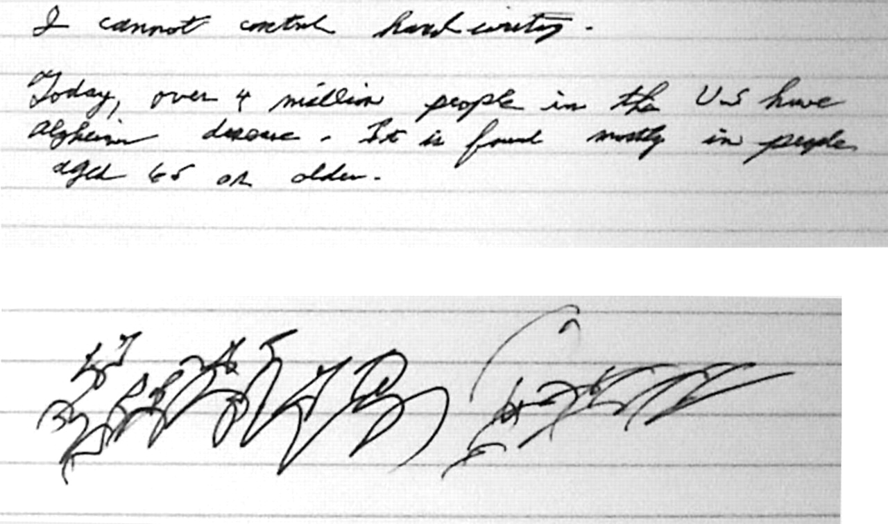 Small Handwriting and Other Early Signs of Parkinson's
