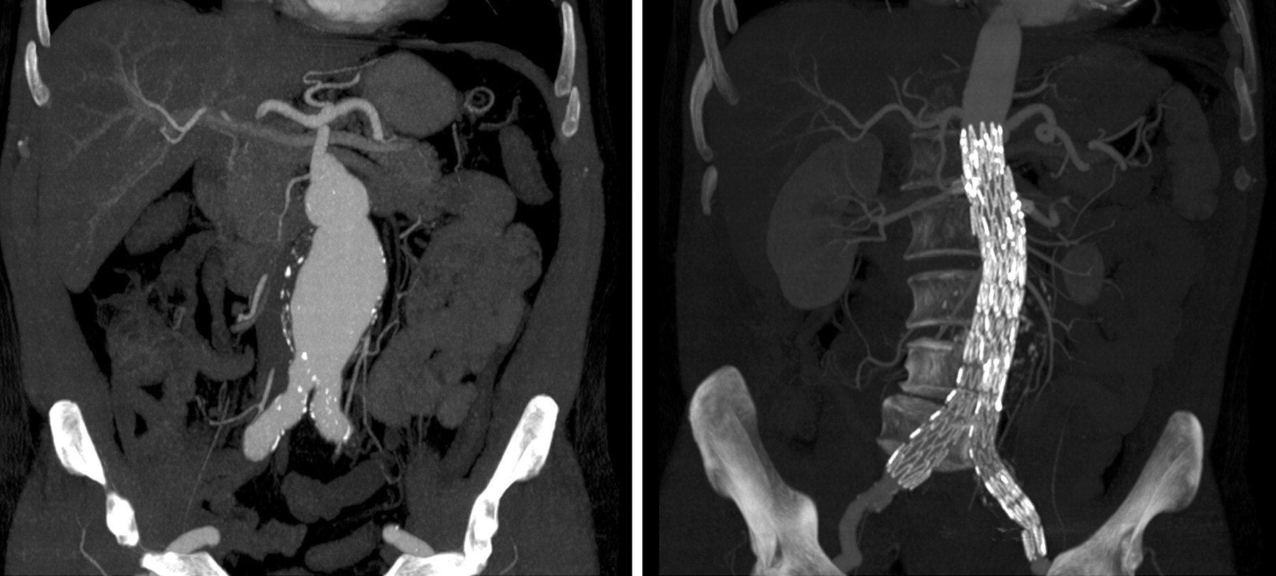 Multidetector computed tomographic angiography of the for Aortic aneurysm mural thrombus