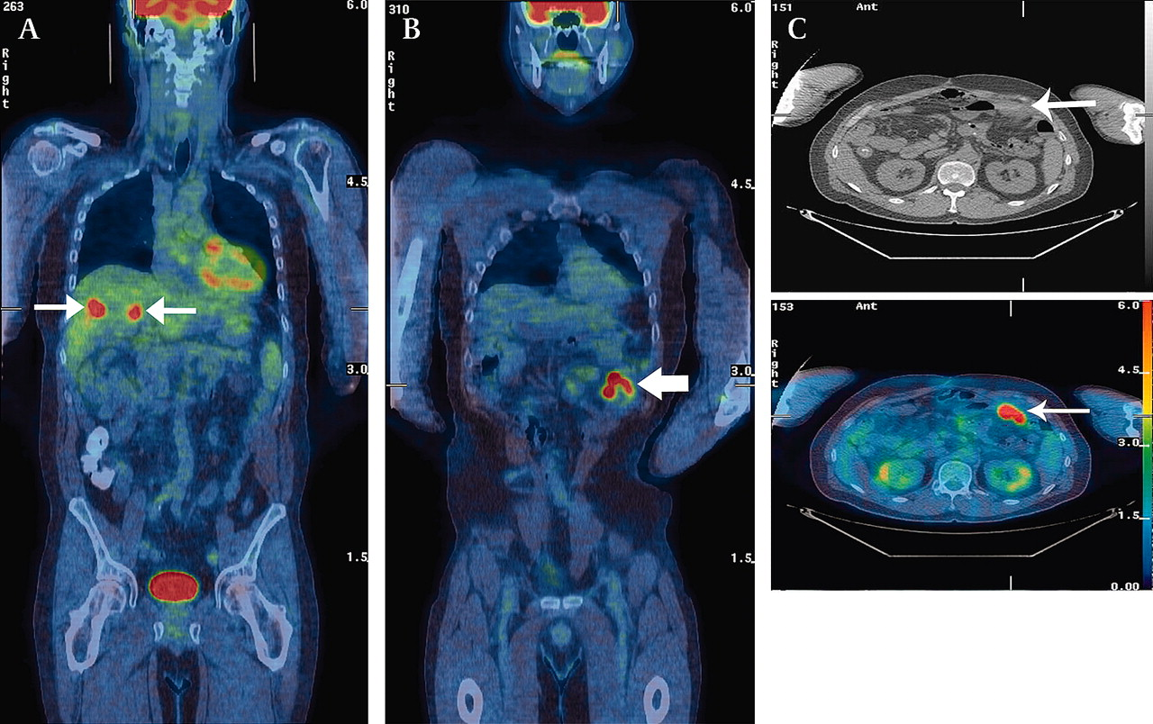 18f Fdg Pet Ct Imaging Of Colorectal Cancer A Pictorial Review Postgraduate Medical Journal