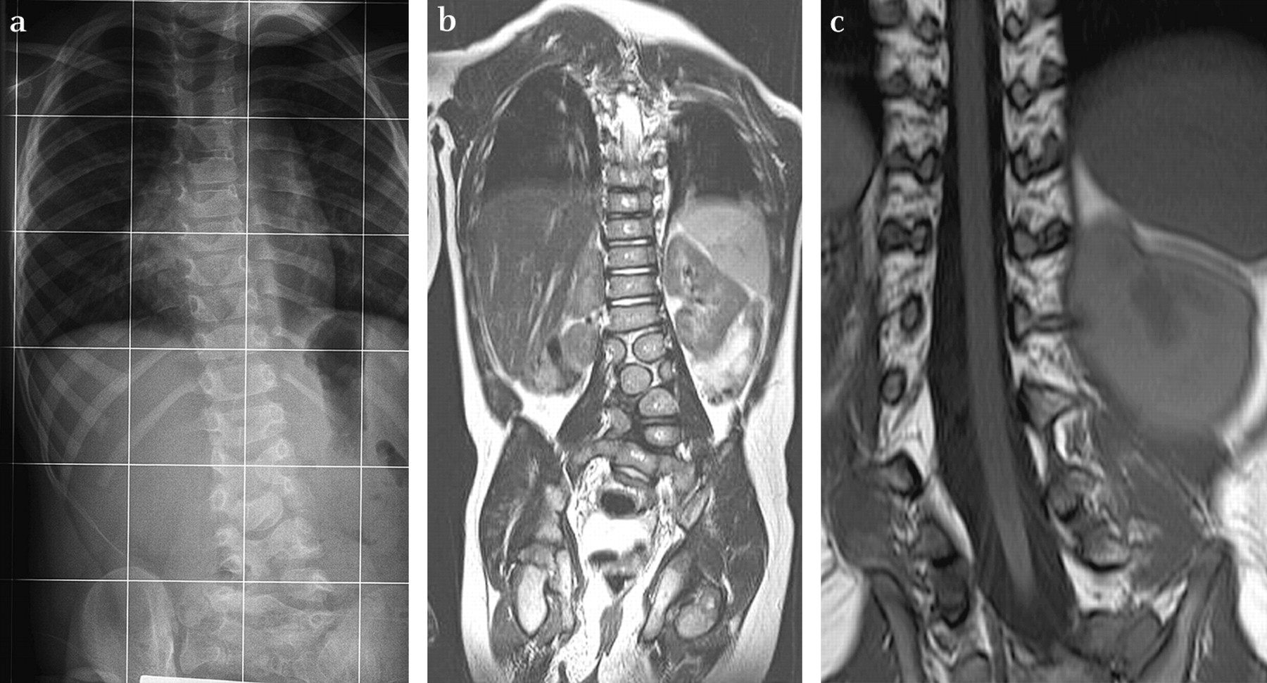 """vertebral column and idiopathic scoliosis results Scoliosis is a rotation in the spinal column that creates a """"c""""-shaped single   some cases worsen with time and can result in serious problems."""