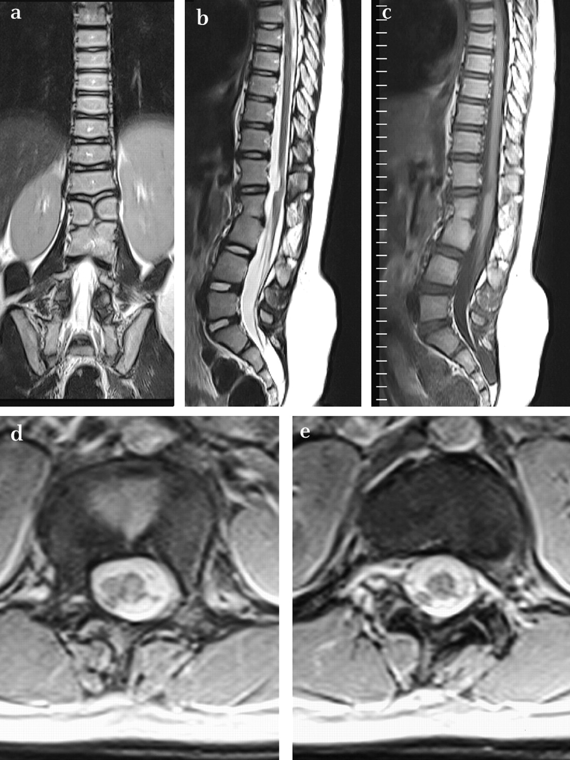 Imaging In Childhood Scoliosis A Pictorial Review Postgraduate