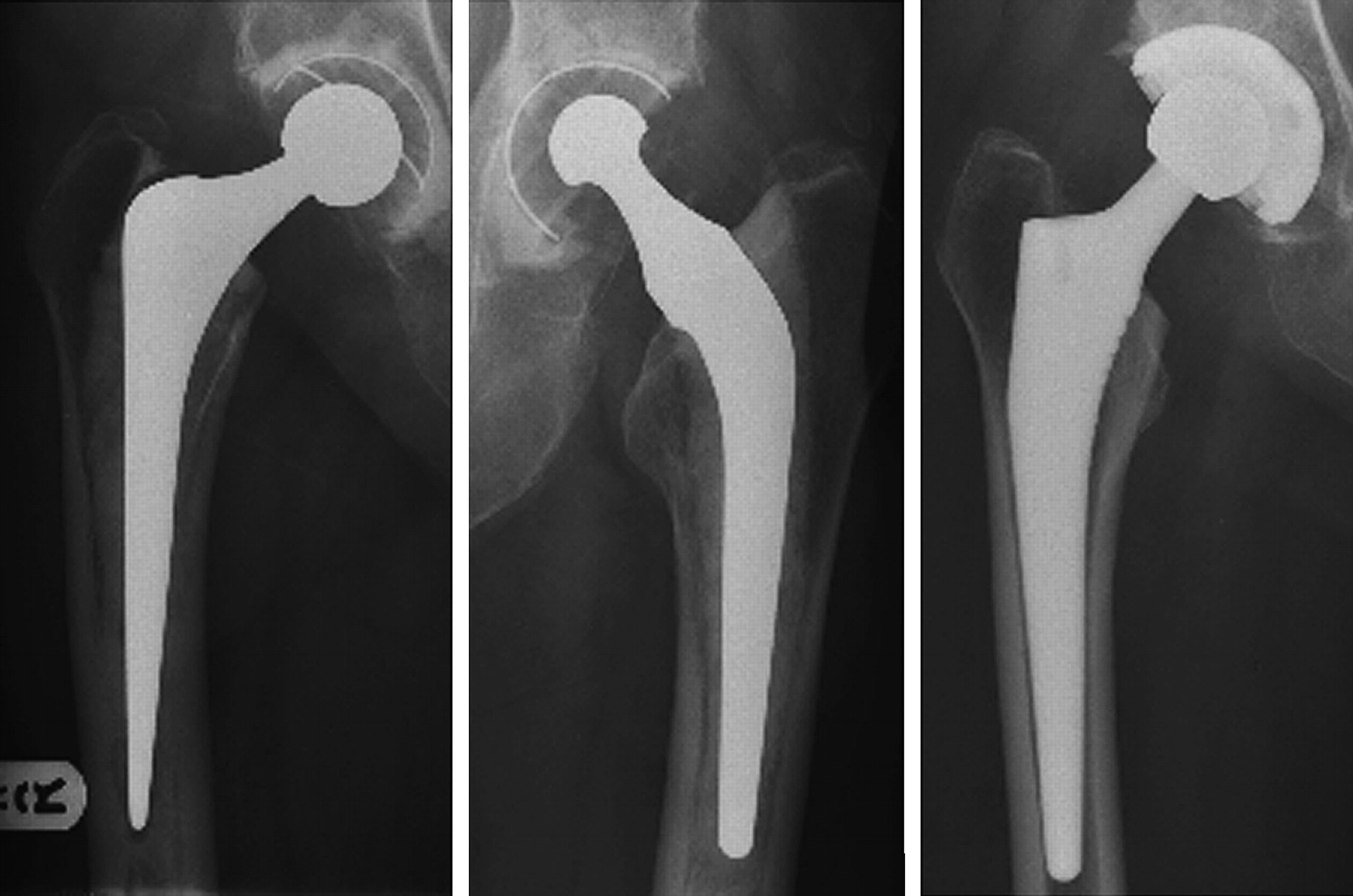 bacteria in hip replacement prothesis International scholarly research notices is a and compare bacterial findings in prosthetic hip joint patients undergoing total hip replacement.