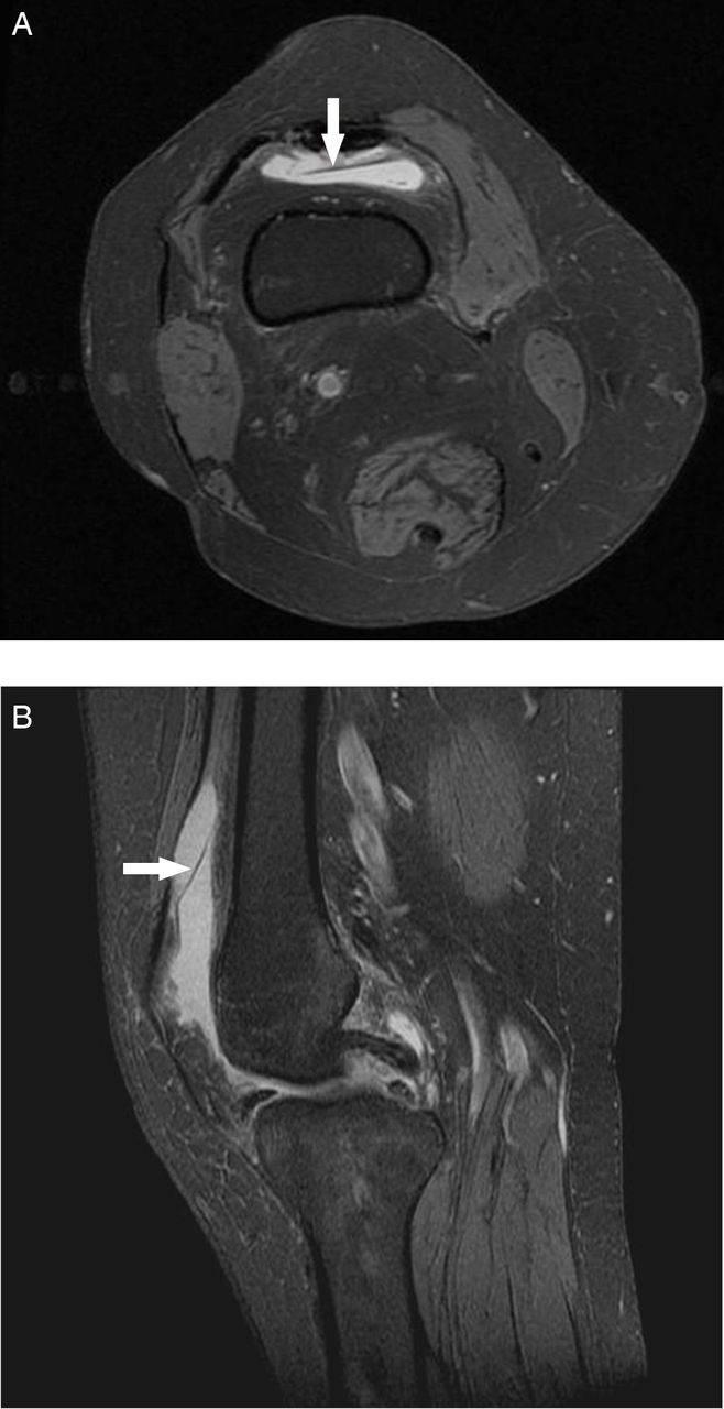 Synovial Plicae Of The Knee Joint The Role Of Advanced