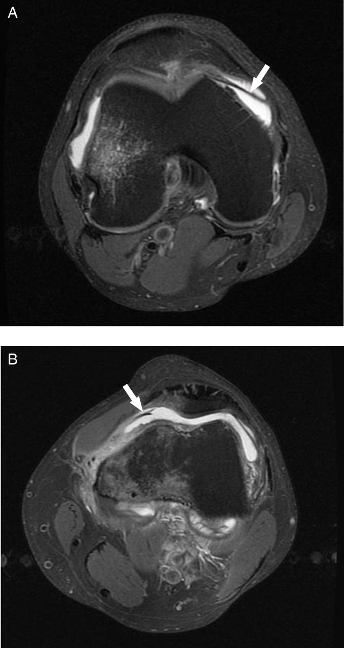 Synovial Plicae Of The Knee Joint The Role Of Advanced Mri