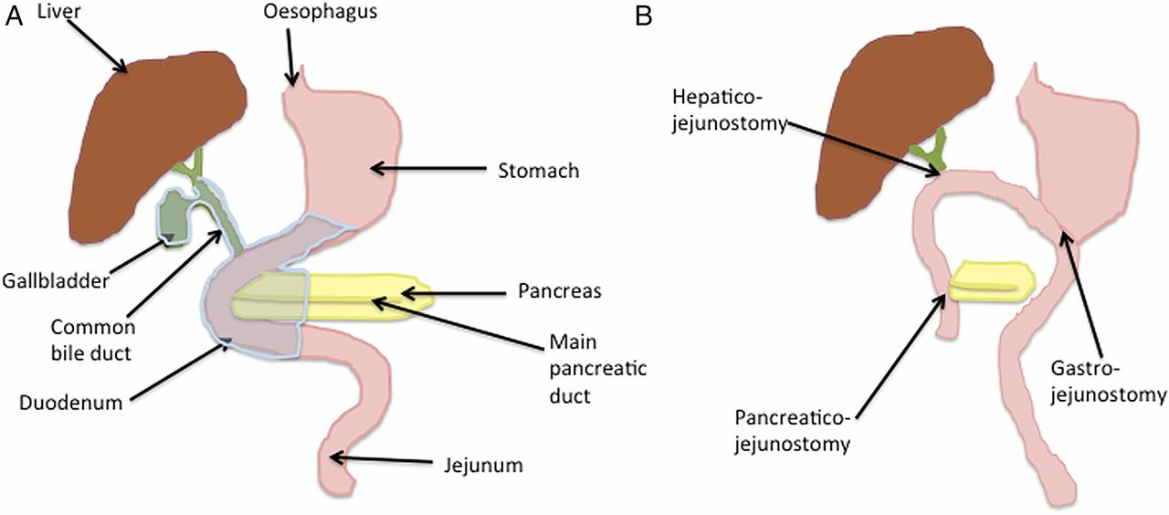 Pancreatic cancer: current management and treatment strategies ...
