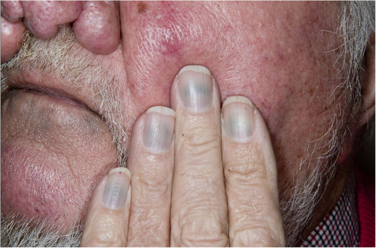 Minocycline-induced pigmentation of the skin and nails ...