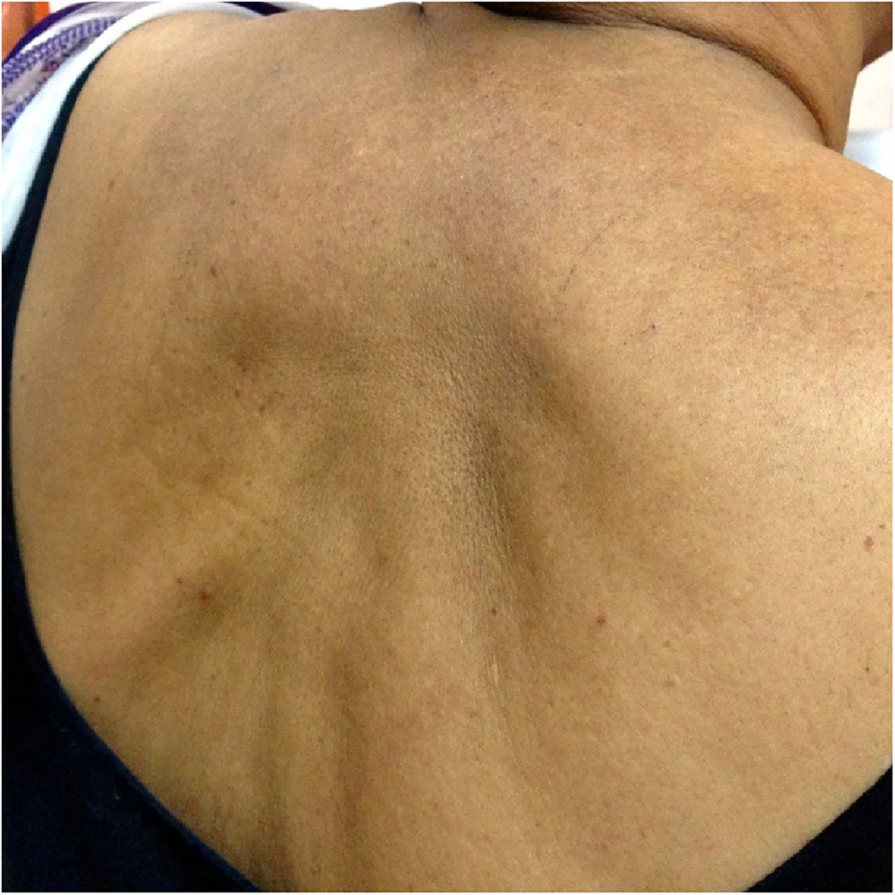 Insulin Injection Sites For Women: Distant Site Lipoatrophy: A Rare Complication Of