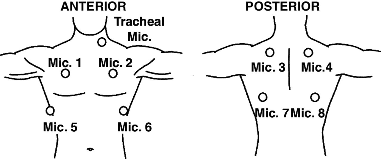 Use of zonal distribution of lung crackles during