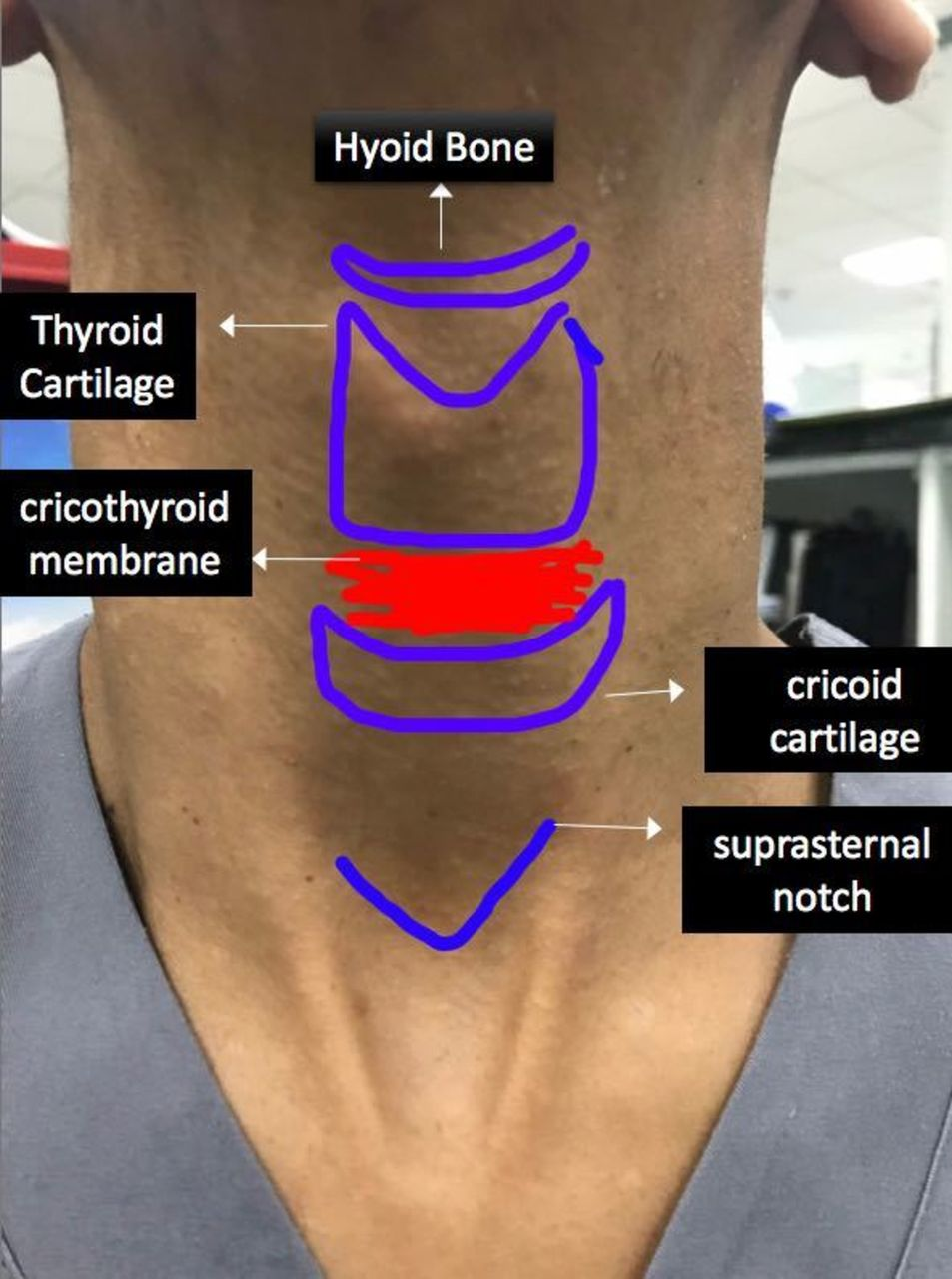 localisation of the cricothyroid membrane by digital