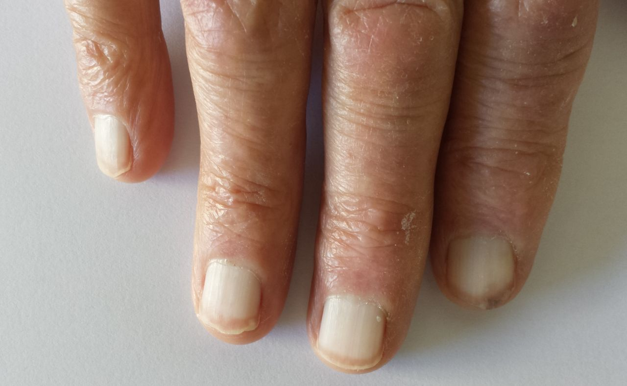 Terry\'s nails, tracking an underneath disease | Postgraduate Medical ...
